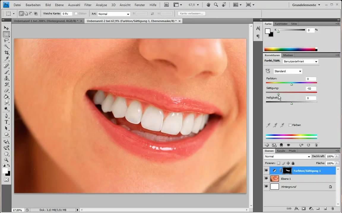 Zähne Färben