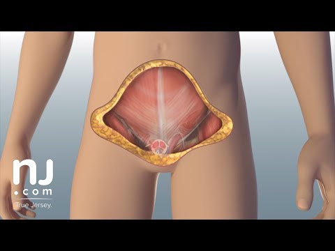 Warning: First-ever penis, scrotum transplant makes surgical history
