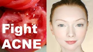 TOMATO Face Mask: Fight Acne & Fade Scars
