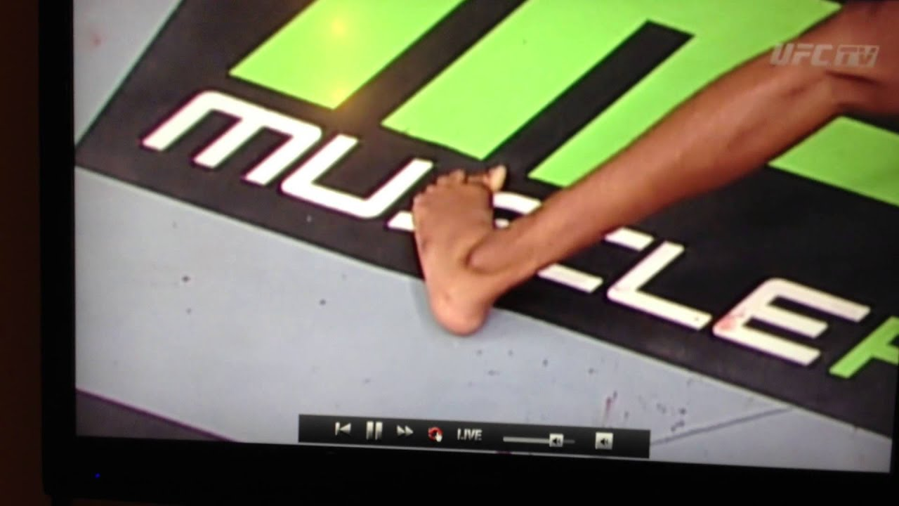 Jon Jones Broken Toe Youtube