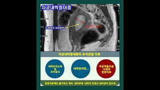 자궁내막증식증의 치료(김 택교수/ 경희기린한의원)
