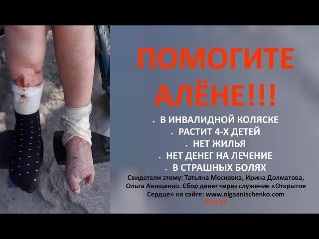 АЛЁНА ЧЕРЕПОВСКАЯ НУЖДАЕТСЯ В ВАШЕЙ ПОМОЩИ - 9/2019