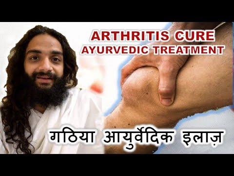AYURVEDIC TREATMENT FOR ARTHRITIS CLASSICAL METHOD BY NITYANANDAM SHREE