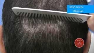hair transplant results scar focus 02 5456
