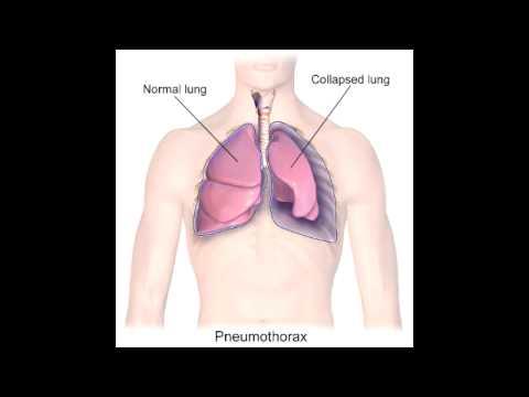 Pneumothorax – Spontaneous & Tension