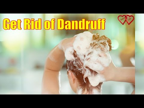 11-natural-treatments-to-get-rid-of-dandruff