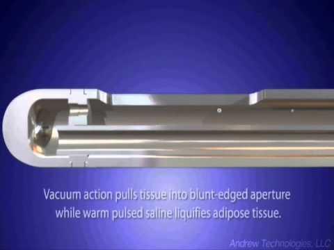 HydraSolve Liposuction Cannula Animation
