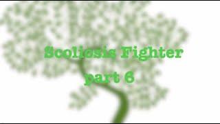 Scoliosis Fighter (Гимнастика Шрот) Part 6(Приятного просмотра!, 2014-07-19T13:56:58.000Z)