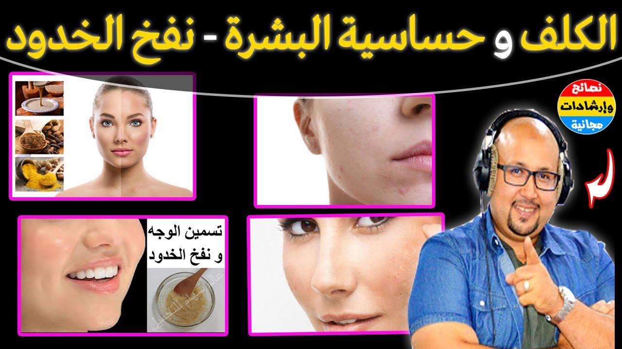 علاج حساسية الوجه والكلف ونفخ الخدود بالمواد الطبيعية متوفرة في كل بيت مع الدكتور عماد ميزاب Youtube Face Face Mask Poster