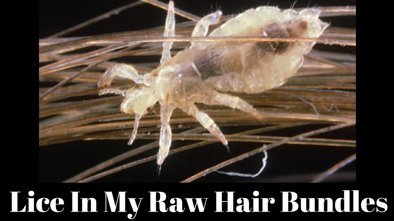 Lice In My Raw Hair Bundles Youtube