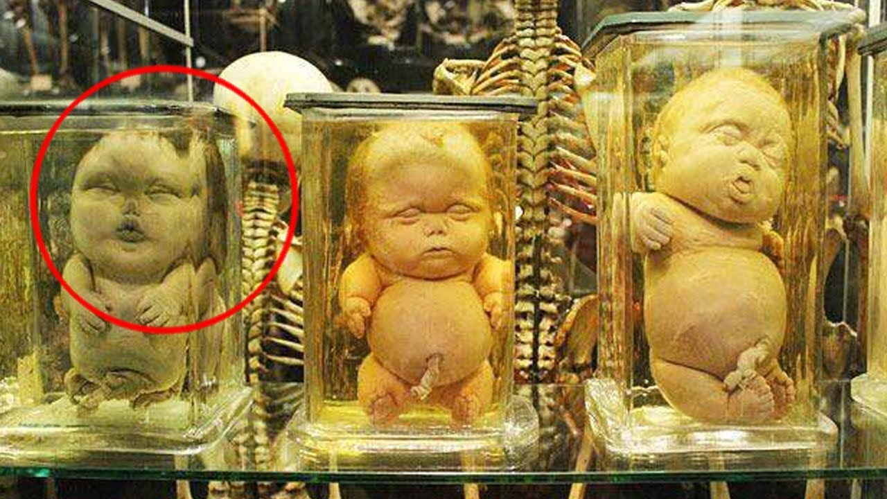 Top 10 weird medical museums in the world pastimers for Top ten museums in the world