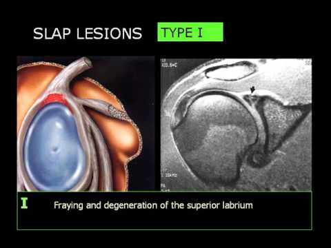 Shoulder Imaging part 3   SLAP injuries & Quiz   Dr Mamdouh