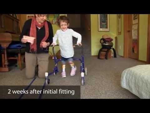 Case study | 3 yr. old girl - excess dorsiflexion/crouching | DAFO Turbo Softy