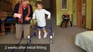 Case study | 3 yr. old girl - excess dorsiflexion/crouching | DAFO Turbo Softy