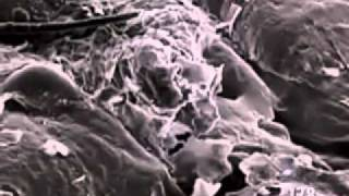 zooming in on the human skin