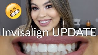 Invisalign UPDATE #2 | Noticing Changes! thumbnail