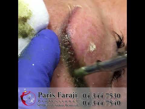 Tattoo removal latest techniques, non laser, no pain, no scars. 2018