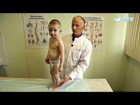 Килевидная и редкие деформации грудной клетки