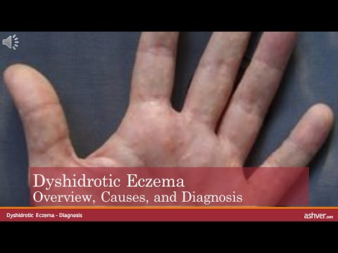 Dyshidrotic Eczema – Overview, Causes, and Diagnosis