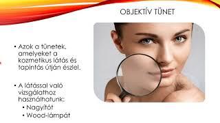 a szukrazit befolyásolja a látást)