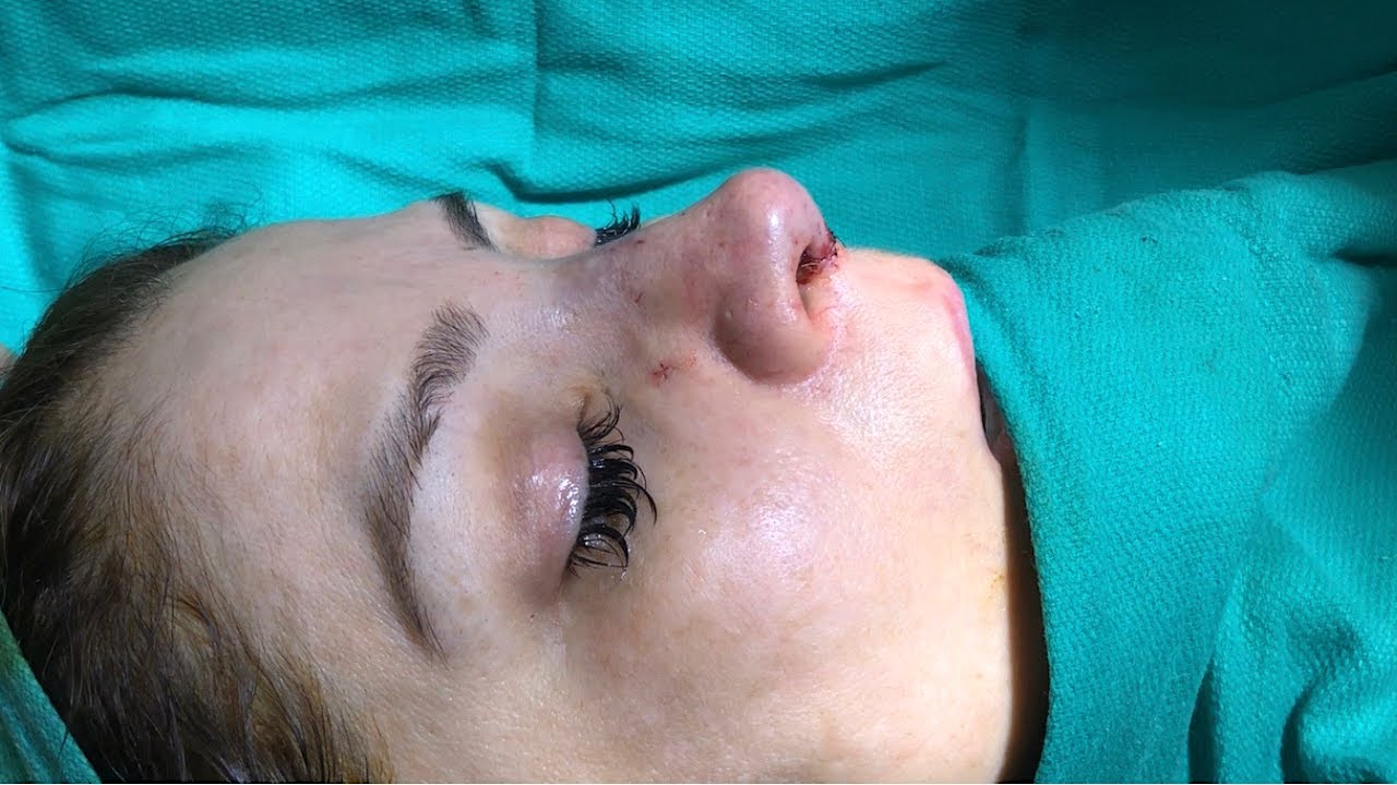 Revision Rhinoplasty Transformation 47 Years Old - Dr  Ghavami