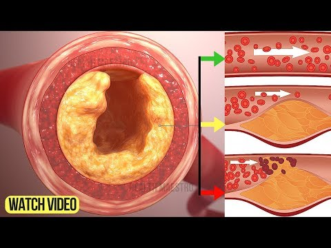 Only 3 Ingredients Will Unclog Your Arteries Without Medication and Reduce Cholesterol Fast