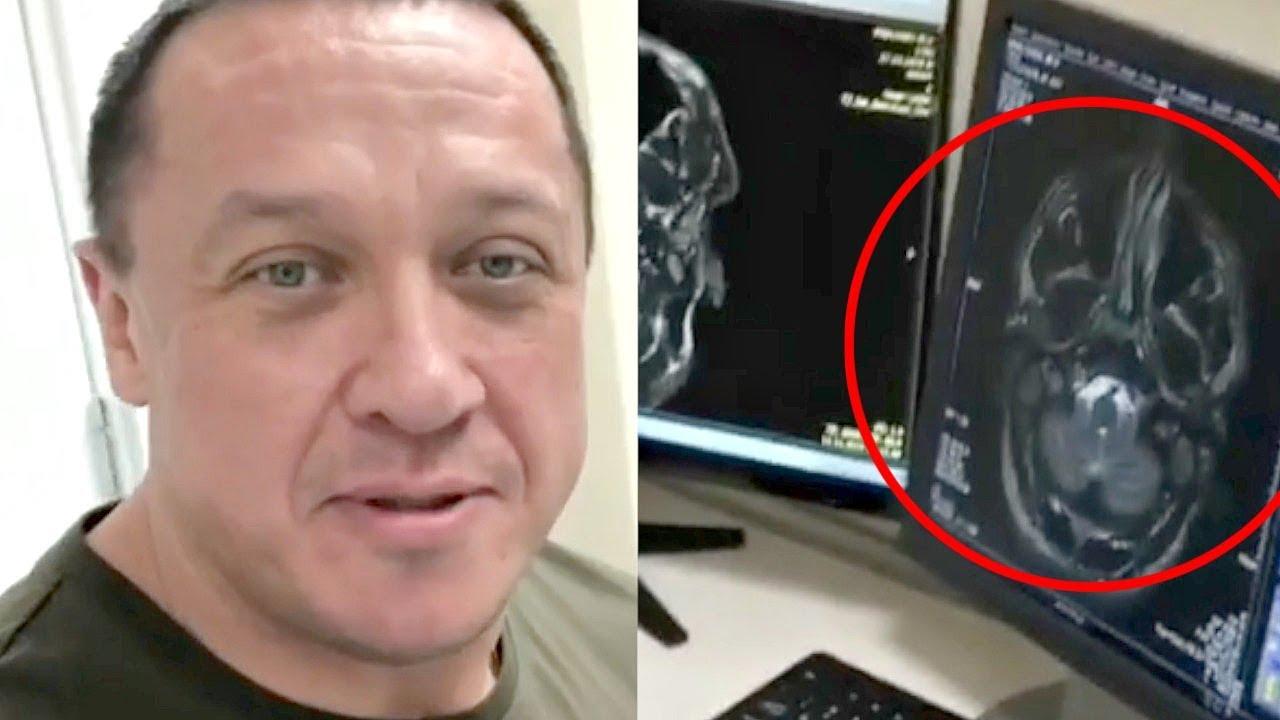 Кокляеву сделали МРТ головы после нокаута Емельяненко!
