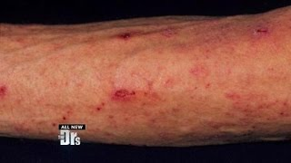 Scabies from the Gym?!