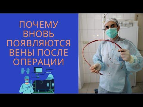 Почему вновь появляются вены после операции. Флеболог Москва. Варикоз.