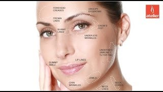 How To Look Younger With BOTOX? Thumbnail