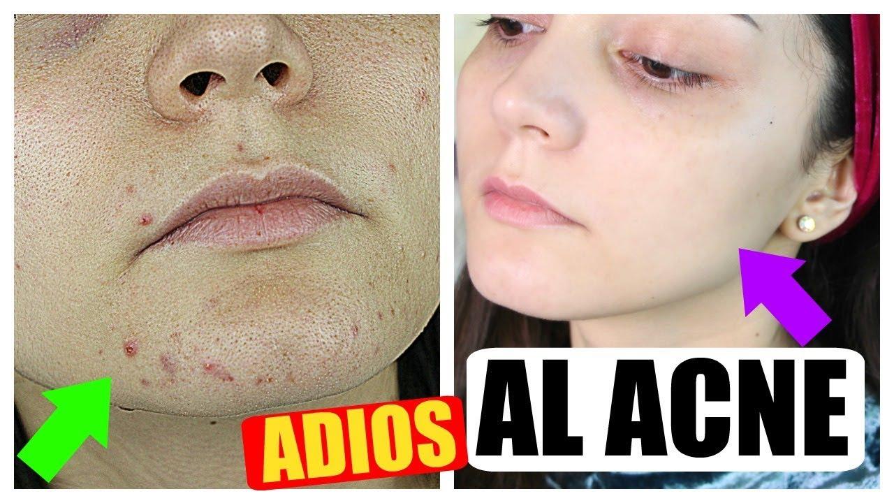 como hacer para quitar el acne dela cara