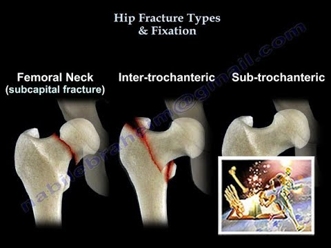 Hip Fracture Types & Fixation - Everything You Need To Know - Dr  Nabil  Ebraheim