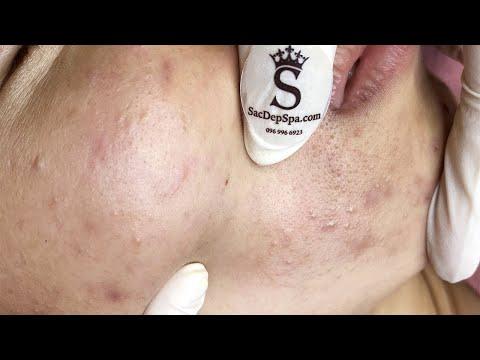 Treat Hormonal Acne | Mụn Do Nội Tiết Tố - SacDepSpa#148
