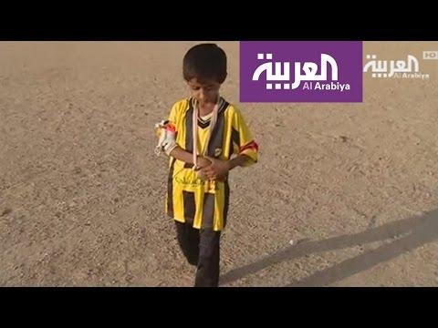 محمد نور اليمني طفل من ضحايا الألغام