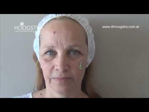 Tratamiento de arrugas con toxina botulinica (16022)