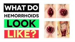 What Do Hemorrhoids Look Like? WARNING! (Medical Pictures)