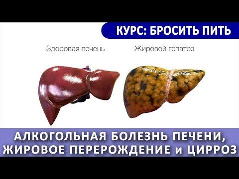 Алкогольная болезнь печени и цирроз
