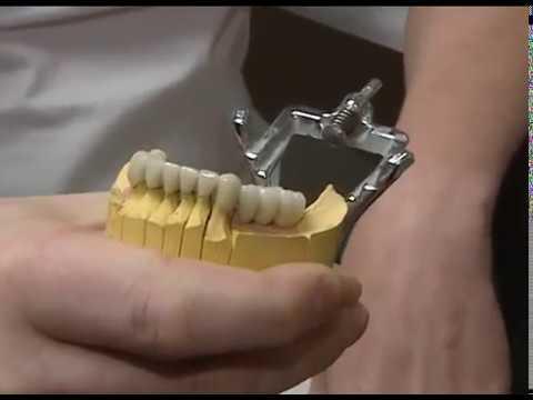 Стоматология Aldenta. Современные импланты зубов и протезирование зубов в Красноярске.