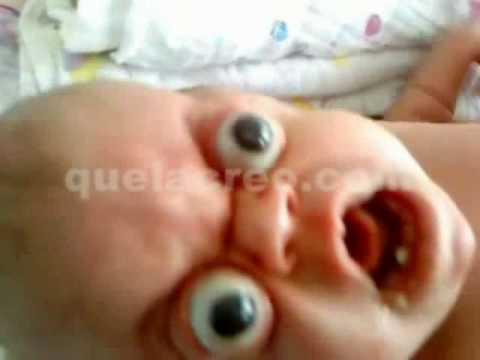 Baby Bug Eyes: Rare Disease ~ Proptosis & Hydrocephalus