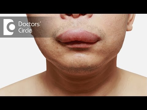 How Can One Manage Angioedema?-Dr. Aruna Prasad