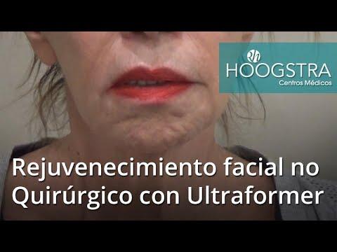 Rejuvenecimiento Facial No Quirúrgico con Ultraformer (18047)