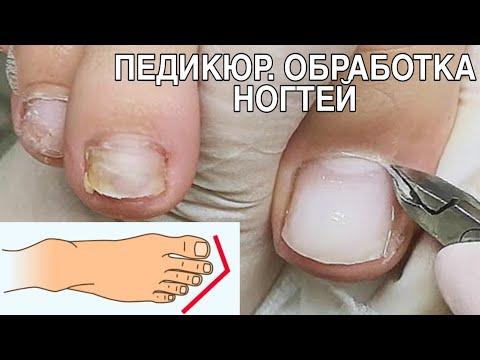 Классическая обработка пальцев в педикюре/Трещина на ногте/Восстановление сломанного ногтя на ногах.