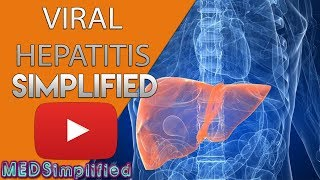 Viral Hepatitis Made Simple - Pathology , Clinical features & Classifications