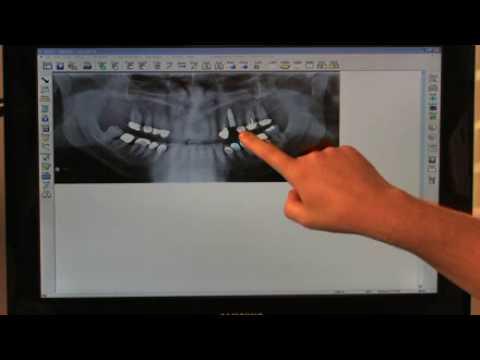 Dr Ryan Taylor Dental Implants Sarasota, Florida FAQ - 1