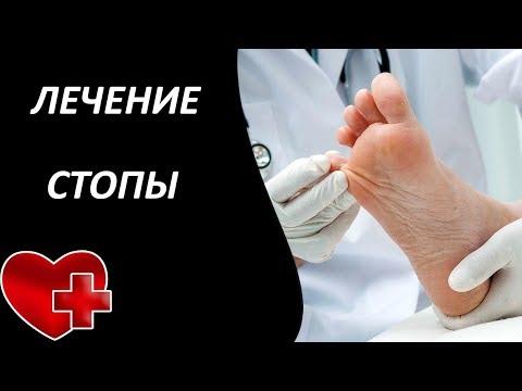 Лечение диабетической стопы в домашних условиях | диабетической | диабетическая | условиях | домашних | лечение | стопы | стопа | в