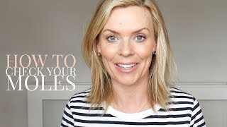 How to check your moles with Dr Stefanie Williams