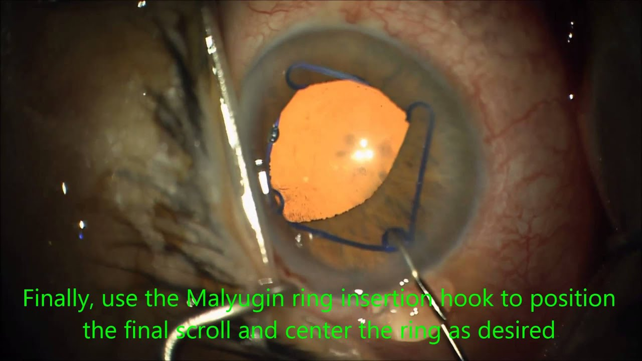 Malyugin Ring Insertion and Removal - YouTube
