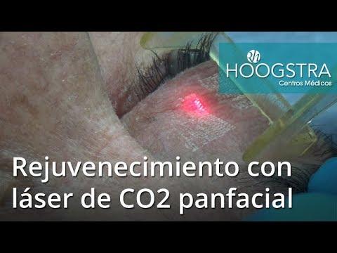 Rejuvenecimiento con láser de CO2 panfacial (17045)