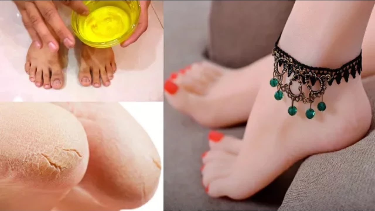 Get Beautiful Feet (Pedicure) Cracked Heels Removal Treatment with Home  Remedies Tips