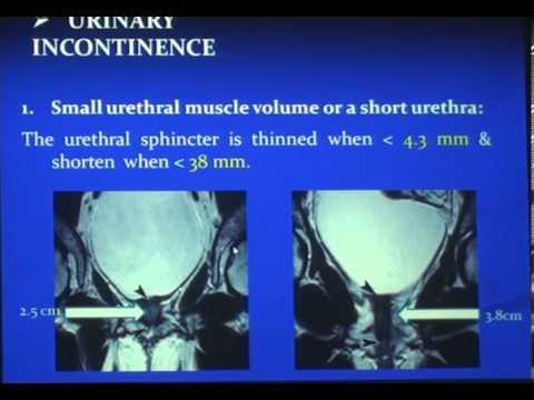 MRI of female pelvic dysfunction